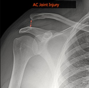 Το εξάρθρημα της ακρωμιοκλειδικής άρθρωσης είναι μία κάκωση, κατά την οποία τραυματίζονται οι σύνδεσμοι που συγκρατούν την κλείδα με την ωμοπλάτη. Αποτελεί περίπου το 9% των τραυματισμών της ωμικής ζώνης και είναι συχνότερος στους άντρες νεαρής ηλικίας. Ο τραυματισμός αυτός επέρχεται συνήθως μετά από άμεση πλήξη ή πτώση στον ώμο (π.χ από το ποδήλατο). Ο ασθενής αισθάνεται αμέσως οξύ πόνο στην πάνω επιφάνεια του ώμου, ενώ πολλές φορές η κλείδα προβάλλει έντονα προς τα πάνω σε σχέση με την υγιή πλευρά. Η ασυμμετρία αυτή είναι εμφανής και από τον ίδιο τον ασθενή.   Ανάλογα με το βαθμό και την κατεύθυνση παρεκτόπισης  της κλείδας σε σχέση με το παρακείμενο οστό του ακρωμίου διακρίνουμε 6 βαθμούς της κάκωσης. 1ου βαθμού: διάταση των συνδέσμων 2ου βαθμού: μερική ρήξη των συνδέσμων 3ου βαθμού: ολική ρήξη των συνδέσμων 4ου βαθμού: ολική ρήξη των συνδέσμων και παρεκτόπιση της κλείδας προς τα πίσω 5ου βαθμού: ολική ρήξη των συνδέσμων και της υπερκείμενης περιτονίας 6ου βαθμού: παρεκτόπιση της κλείδας προς τα κάτω (εξαιρετικά σπάνια περίπτωση).