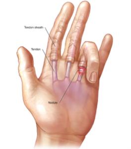 Εκτινασσόμενος δάκτυλος (Τrigger finger)